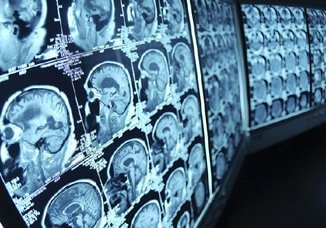 brain-scan-images-repeat